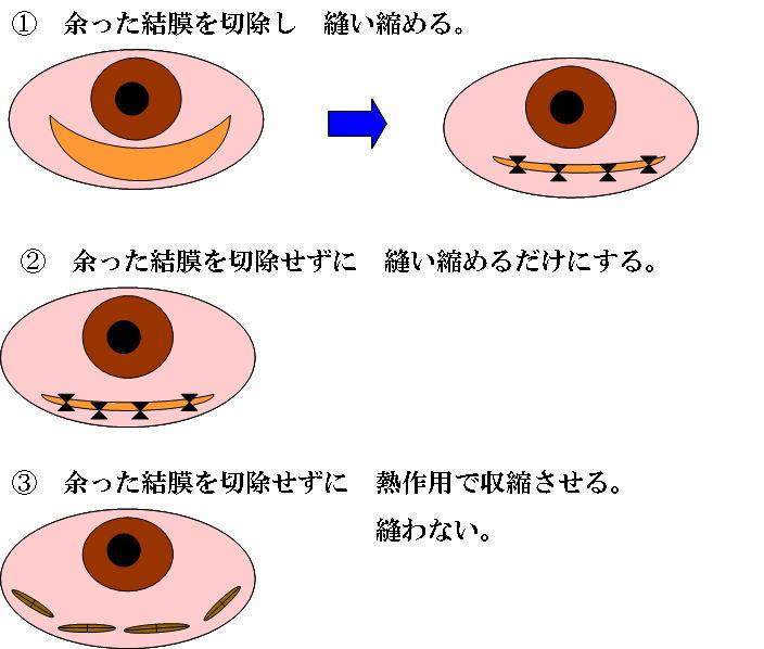 結膜 弛緩 症 手術